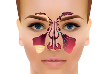 Symptomer Bihulebetennelse